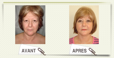 lifting cervico facial photos