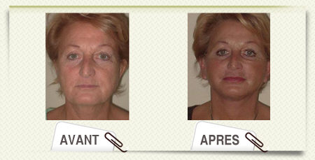 lifting visage avant apr�s
